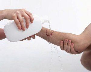 bersihkan luka